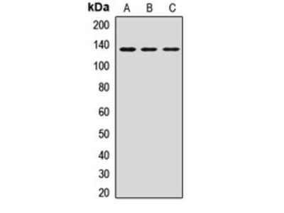 Anti-HTATSF1 Antibody