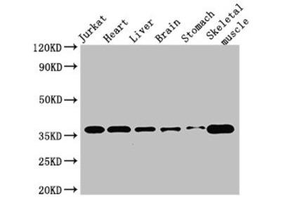USE1 Antibody