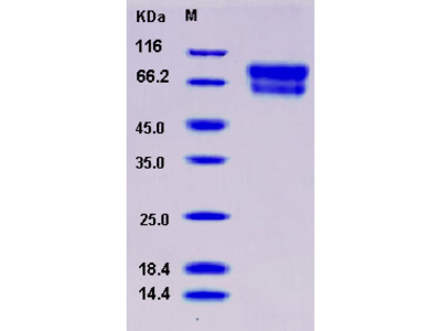 Recombinant Mouse SerpinA10 / ZPI Protein (His tag)