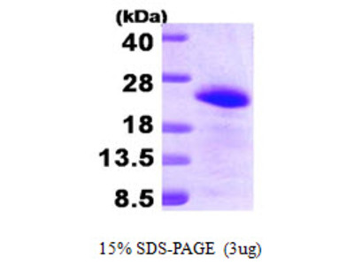 BAALC Brain and Acute Leukemia Cytoplasmatic Human Recombinant Protein