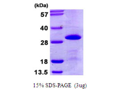 Human SNRPB2 Recombinant Protein