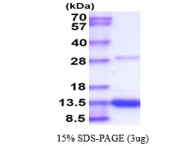 S100A4 S100 Calcium Binding Protein A4 Mouse Recombinant Protein
