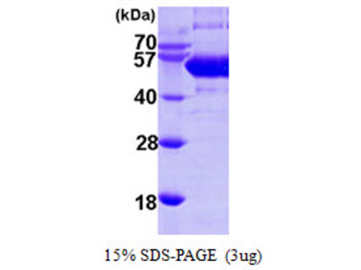 Human SEPSECS Recombinant Protein