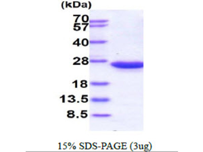 RAC2 Ras-Related C3 Botulinum Toxin Substrate 2 Human Recombinant Protein
