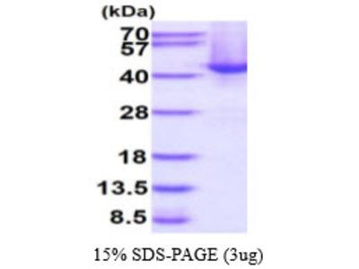 Human SPOP Recombinant Protein