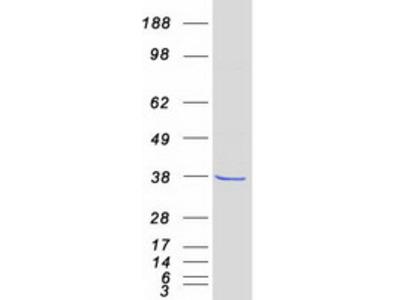 FN3K Fructosamine 3 Kinase Human Recombinant Protein