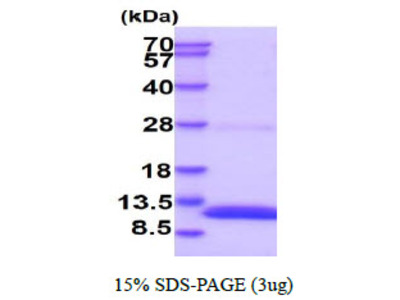 S100b Mouse, S100 Calcium Binding Protein B Mouse Recombinant Protein, His Tag
