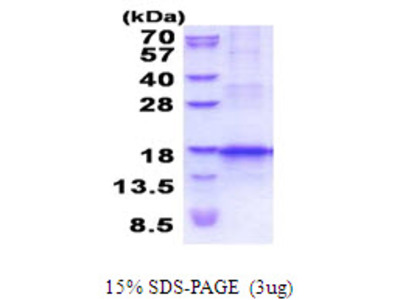 TECK Human, Thymus Expressed Chemokine (CCL25) Human Recombinant Protein, His Tag
