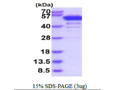 BRD3 Bromodomain Containing 3Human Recombinant Protein
