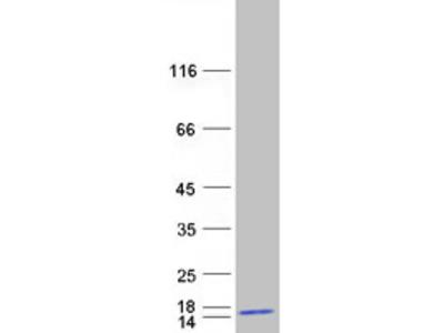 BLOC1S2 Biogenesis of Lysosomal Organelles Complex-1, Subunit 2 Human Recombinant Protein