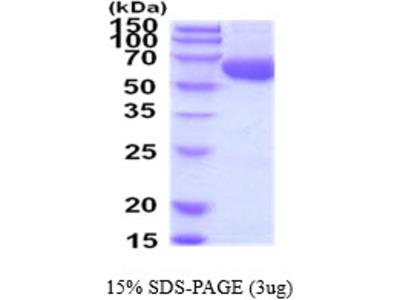 ACSF2 Acyl-CoA Synthetase Family Member 2 Human Recombinant Protein