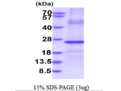 IGLL1 Immunoglobulin Lambda-Like Polypeptide 1 Human Recombinant Protein