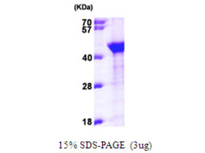 AIMP1 Aminoacyl tRNA Synthetase Complex-Interacting Multifunctional Protein 1 Human Recombinant Protein