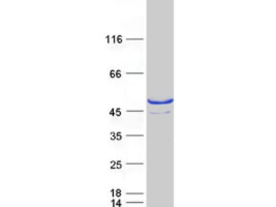 SULT2B1 Human Recombinant Protein