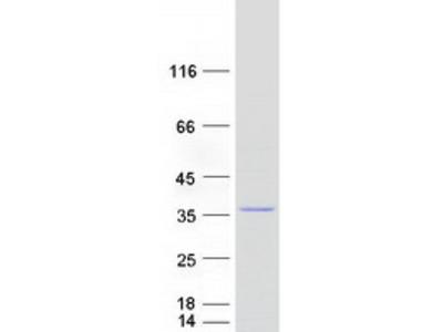 MRPL28 Mitochondrial Ribosomal Protein L28 Human Recombinant Protein