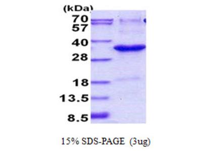 JAZF1 JAZF zinc finger 1 Human Recombinant Protein
