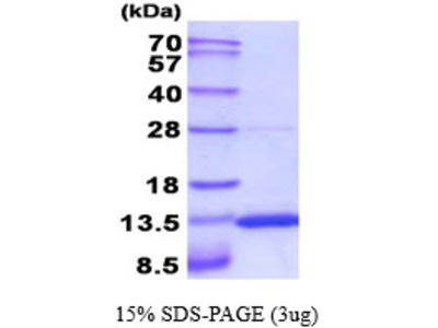 S100A10 Recombinant Protein Mouse S100 Calcium Binding Protein A10