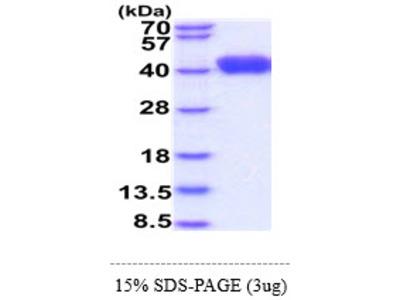 LRG1 Leucine-Rich Alpha-2-Glycoprotein 1 Human