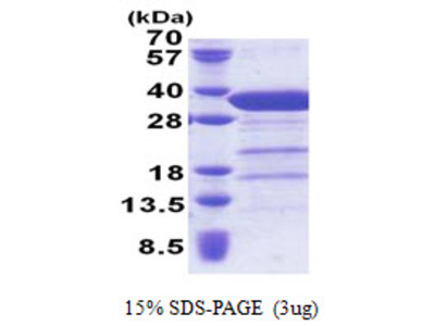 Human Syntaxin 6 Recombinant Protein