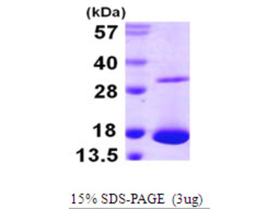 LGALS10 Charcot-Leyden Crystal Protein Human Recombinant Protein