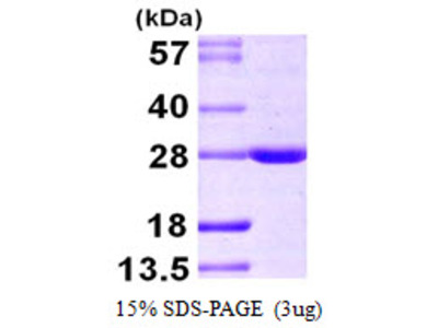 BAG2 BCL2-Associated Athanogene 2 Human Recombinant Protein