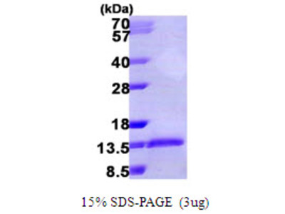 MIP-1a Macrophage Inflammatory Protein-1 Alpha Human Recombinant Protein (CCL3)