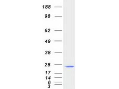 SAR1 (SAR1A) Human Recombinant Protein