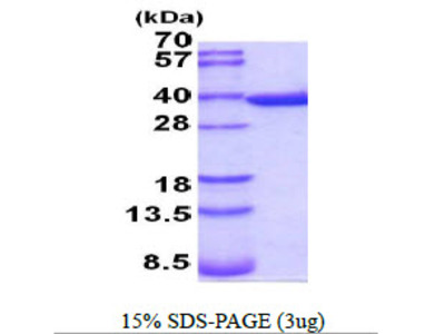 ANXA5 Annexin A5 Mouse Recombinant Protein