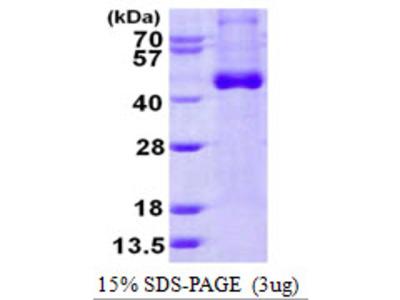 IL-12-p40 Interleukin-12 p40 Human Recombinant Protein, Plant