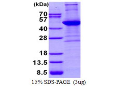Human ACTA2 Recombinant Protein