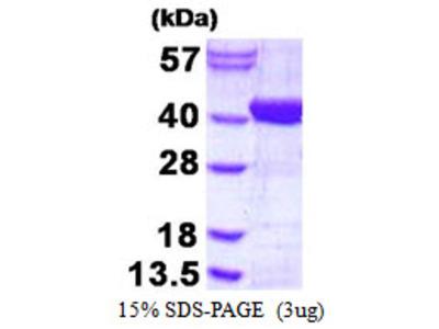 ADPRHL2 ADP-Ribosylhydrolase Like 2 Human Recombinant Protein
