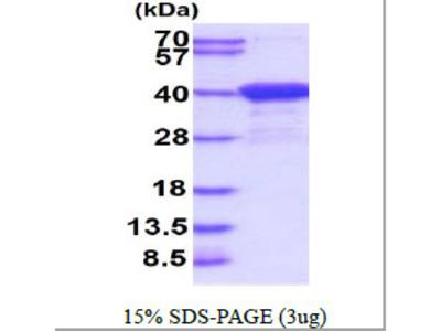 Aspartoacylase Human Recombinant Protein
