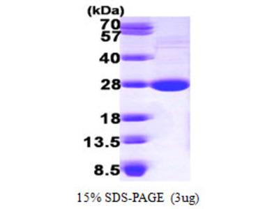 LYPLA1 Lysophospholipase I Mouse Recombinant Protein
