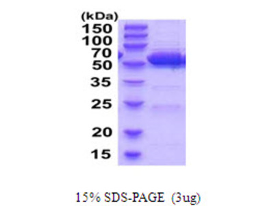 ALDH2 Aldehyde Dehydrogenase 2 Mouse Recombinant Protein