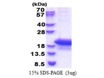 ARPP19 CAMP-Regulated Phosphoprotein, 19kDa Human Recombinant Protein