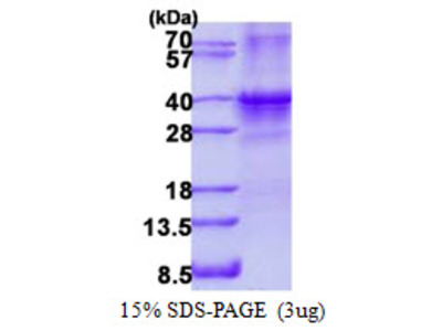 Human SIX1 Recombinant Protein