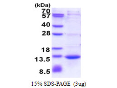 CAMK2N1 Calcium/Calmodulin Dependent Protein Kinase II Inhibitor 1 Human Recombinant Protein