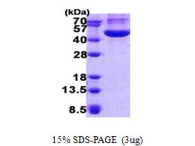 CHI3L1 Chitinase 3-Like 1 Human Recombinant Protein