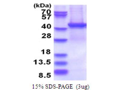 PSMD13 Proteasome 26S Subunit, Non-ATPase 13 Human Recombinant Protein