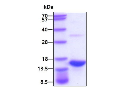 S100A9 S100 Calcium Binding Protein A9 Human Recombinant Protein