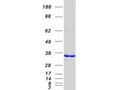 PITPNB Phosphatidylinositol Transfer Protein Beta Human Recombinant Protein