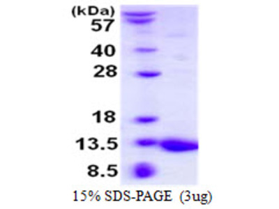 S100A5 S100 Calcium Binding Protein A5 Mouse Recombinant Protein