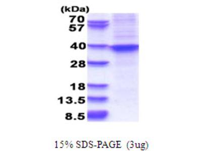 HOXA9 Homeobox A9 Human Recombinant Protein