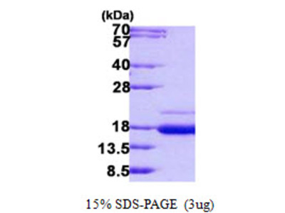 SSR2 Signal Sequence Receptor, Beta Human Recombinant Protein