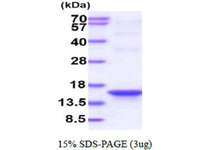 IPP-POZ Human Recombinant Protein