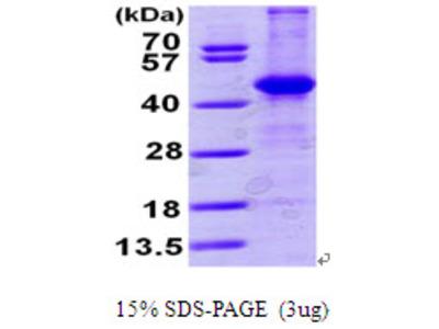 ACY1 Aminoacylase-1 Human Recombinant Protein