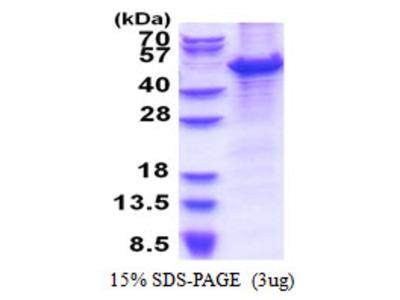 MCM7 Minichromosome Maintenance Complex Component 7 Human Recombinant Protein