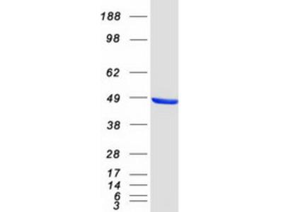 CTBP1 C-Terminal Binding Protein 1 Human Recombinant Protein