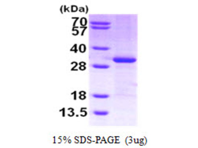 CITED2 Cbp/p300-Interacting Transactivator 2 Human Recombinant Protein