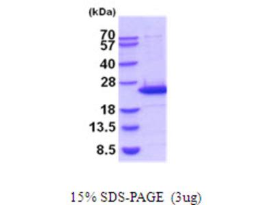 Mouse Lipocalin-2/NGAL Recombinant Protein